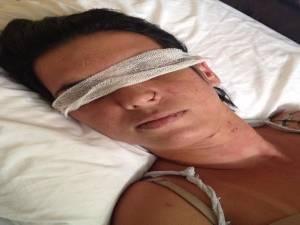 'Ela pode não enxergar mais', diz mãe de mulher que teve olhos perfurados